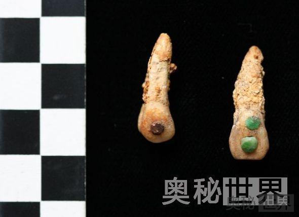 镶有宝石的牙齿