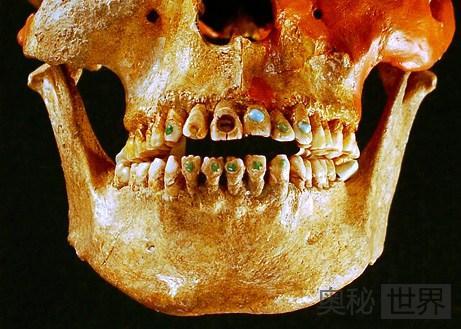 镶满宝石的史前牙齿