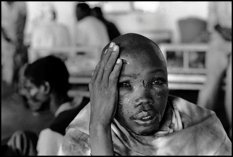 1994年,卢旺达西南部的卡布加伊,一名儿童难民在医院避难,他的脸上布满伤痕。