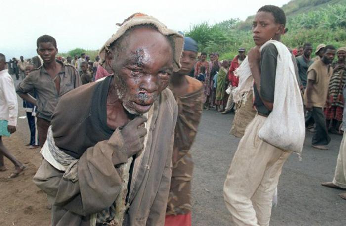 1994年7月8日,卢旺达吉孔戈罗,难民中一位严重受伤的老者。